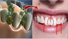 Ce trebuie să faci ca să nu-ţi mai miroasa gura urât! Leacul care omoară toate bacteriile din gura ta în doar 5 minute…