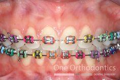 Future Oral Surgeon To Get Braces Food To Avoid, Braces Tips, Kids Braces, Dental Braces, Teeth Braces, Dental Surgery, Rainbow Braces, Cute Braces Colors, Getting Braces