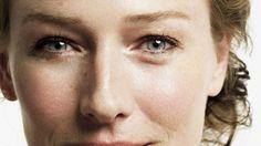 Eliminar exceso de piel y grasa en párpados con la operación de Blefaroplastia y rejuvenecer la mirada y todo el rostro
