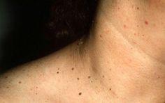 Os 3 Remédios Caseiros Para Papiloma Fibroepitelial   Dicas de Saúde