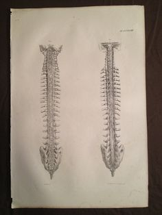 Antique Original 1831 Human Anatomy Medical Print - Dual Spinal Study
