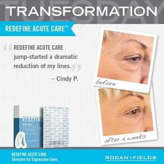 Results from Rodan + Fields REDEFINE Acute Care!  https://hollymsnyder.myrandf.com/Shop/REDEFINE #skincare #healthyskin #TransformationTuesday #redefine #results #nowrinkles
