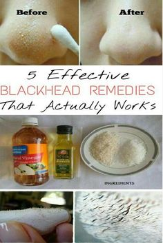 Blackheads are the pesky tiny black spots, which are found on your face as if they've rented the space like a boss. Blackheads can be embarrassing. Fret not! Just go through these Top 5 Effective Ways For Overnight Blackhead Removal. Before Starting: Before getting started, make sure to follow these steps. • Steaming – Steam …