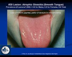 Atrophic glossitis - Google Search