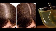 Se acabaron los tintes, este remedio natural te ayudará a eliminar las canas y te dará mucho volumen. Miles de personas en todo el mundo sufren alopecia, es decir, caída del cabello. Otros centenares padecen a diario cuando el pelo no les crece o es muy fino y quebradizo. Un buen remedio casero para evitar …