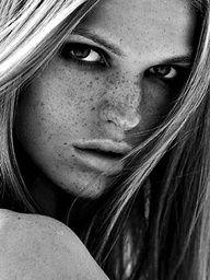 Beautiful freckles | myLusciousLife