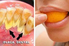 Os 5 melhores remédios naturais para acabar com a placa dental