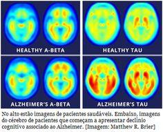 Proteína tau explica Alzheimer melhor que beta-amiloide  Os níveis da proteína tau são melhores indicadores do declínio cognitivo da doença de Alzheimer do que os níveis das proteínas beta-amiloides quando ambas são medidas através de exames PET.
