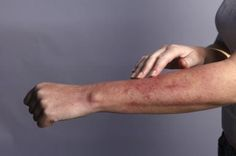 Some studies have suggested that gluten can trigger psoriasis symptoms. Learn about the link between psoriasis and celiac disease. Rash On Hands, Contact Dermatitis Treatment, Celiac Disease Symptoms, Lupus Flare Symptoms, Lupus Flare Up, Allergy Symptoms, Autoimmune Disease, Skin Rash, Sans Gluten