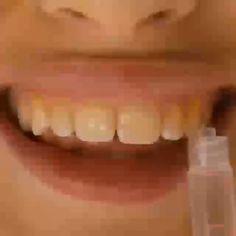 Ter Dentes Brancos Nunca foi Tão Fácil Com Este Produto Revolucionário #dentesbrancos #dentebranco #dentesbonitos #dentesamarelados #denteamarelo #dentesescuros #denteslindos #dentelindo #dentesperfeitos #dentesmanchados #dentesgastos #dentessensiveis #dentista #dentes #dente #odontologia #bemestar #tuasaude #blogdamine #saudeparavida #dicasetruques #melhorcomsaude #belezadicas #dicasdesaud Health Trends, White Teeth, Natural Home Remedies, Teeth Whitening, Brazil Brazil, Everyday Makeup Tutorials, Teeth Care, Ponytail Hairstyles, Bridal Makeup