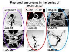 Natural course of unruptured cerebral aneurysms varies according to the size, location, and shape