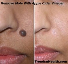 Apple cider vinegar mole removal completely removes mole from face and body step by step natural and safe home remedy with ingredients easily available