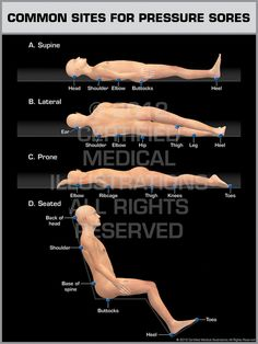 21 best spinal cord injury skin managementtips images on pinterest common sites for pressure sores print quality instant download fandeluxe Images