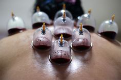 My new obsession! Cupping therapy! Wow my neck sure is stagnant! On my way to being pain free again!