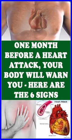One Month Before a Heart Attack, Your Body Will Warn You – Here are the 6 Signs Natural Remedies For Allergies, Natural Headache Remedies, Natural Remedies For Anxiety, Health And Beauty, Health And Wellness, Health Fitness, Women's Health, Heart Health, Health Care