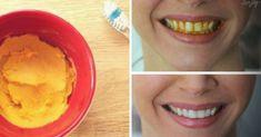 Wybiel zęby w bezpieczny sposób bez wydawania fortuny. Wystarczy tylko jeden naturalny składnik | 5 Minut dla Zdrowia Health Fitness, Ice Cream, Diet, Desserts, Beauty, Food, Wax, No Churn Ice Cream, Tailgate Desserts