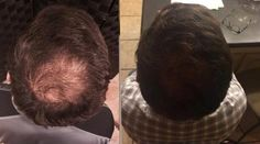 #healthy #hair 5 weeks of using Hair Skin Nails supplements.  Start yours today for 40% off retail price.