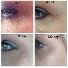 Amazing nerium results! Contact me for your bottle  at http://vesposito.nerium.com