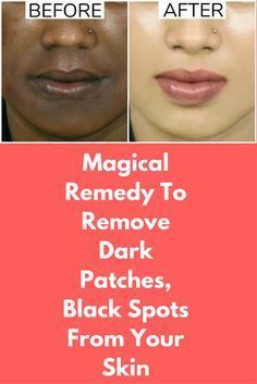 Magical Remedy To Remove Dark Patches, Black Spots From Your Skin This remedy is an all in one solution for all skin problems. It will...