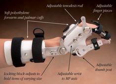 NC-99485L_Talon Adjustable Orthosis.jpg 600×436 pixels