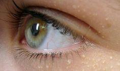 Yağ Bezesi Nasıl Geçer? Çoğumuzun başa çıkamadığı bir derttir yağ bezeleri.. Diğer adıyla epidermal kist olan bu küçük beyaz noktacıklar en çok göz çevresi, kulak arkası ve sırt