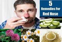 Red nose or Rosacea occurs when the blood vessels get enlarged. Other central parts of the face might also get affected as a result of this disease. If you are suffering from red nose, it is best to stay away from extreme temperature changes and also certain foods that are said to be allergenic. You can always go for allopathic treatment for this skin disorder but there are also many simple yet effective home remedies that can cure you of this disease permanently. These helpful home remedies…