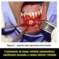 Tratamiento conservador de tumor epitelial odontogénico calcificante asociado al canino inferior retenido | OVI Dental