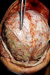 Autopsy - Wikipedia, the free encyclopedia