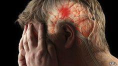 Estos son los síntomas que podrían estar avisándote que sufres un ACV