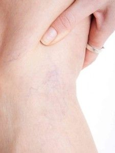 If you are noticing little blue and red #veins are becoming more obvious and prevalent on your legs, you could be suffering from #spiderveins. The best thing for you is to call our offices to help you stop this into becoming a more serious problem in the coming year! 915.201.0252