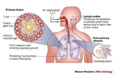 http://www.medi-info.com/colorectal-cancer/ colorectal cancer #colorectal #cancer