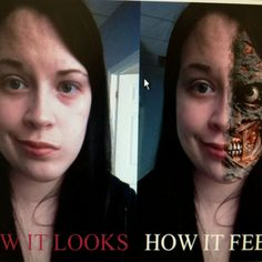 When they cut my facial nerve, I didn't think it would feel like this. But it does.