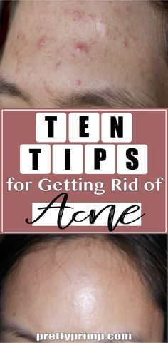 Tired of treatments and products not completely eliminating acne? Try these lifestyle tips and tricks to get rid of your acne instead!