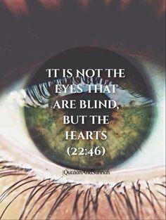 not the eye