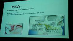Dental nerve and teeth (maxillary)