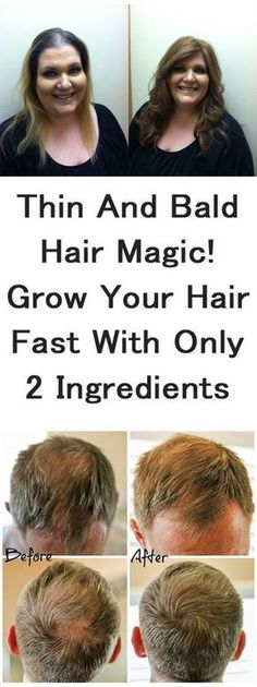 Thin and Bald Hair Magical Growth of Your Hair Fast With Only 2 Ingredients Thin and bald hair is a big issue, especially for women. Thick and shiny hair is considered as a hallmark of beautiful women. How To Grow Your Hair Faster, How To Regrow Hair, Hair Starting, Hair Loss Remedies, Remedies For Thinning Hair, Hair Remedies For Growth, Hair Regrowth, Biotin Hair Growth, Castor Oil For Hair Growth
