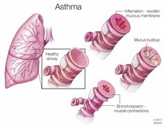 #Asthma discovery may lead to new therapeutic approach http://mayocl.in/1Fsf92X @AAAS_News