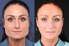 Most of the beauty seekers don't go for surgery and turn down their dream of v shape face. With the increasing number of beauty seekers, there are many platforms offering surgical methods or some injectable medications directed towards jaw reduction. V Shape Face, Face Shapes, Jaw Reduction Surgery, Shape Transformation, Facial Feminization Surgery, Chin Implant, Facial Fillers, Square Faces, Lips