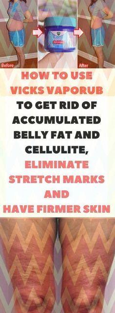 The best ways to Get rid of Warts Naturally #WartsOnHands #HowToRemoveWartsOnFeet #HowToGetRidOfSkinWarts #SkinWartsAroundEyes #RemoveSkinGrowthOnFace #SkinWartsCauses #NaturalRemediesForSickness Warts On Hands, Warts On Face, Foot Warts, Skin Wars, Vicks Vaporub, Cellulite, Get Rid Of Warts, Remove Warts, How Do You Remove