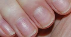One of the issues that we see in some fibromyalgia patients is brittle nails. What are brittle nails? Brittle nails are categorized by nails that are cracked, chipped, split or peeling Signs Of Lung Cancer, Cancer Sign, Beat Cancer, Nail Health Signs, Body Fitness, Health And Wellness, Get A Life, Health Tips, Pura Vida