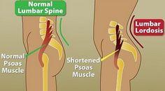 L'iperlordosi lombare rappresenta un eccessivo aumento della curva lordotica lombare e può essere associato ad altre alterazioni posturali. È possibile dis