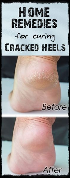 Do you have dry, cracked heels? Here's a quickly way to combat this problem!   Ideal Beauty Guide