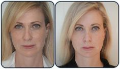 people who have beautiful skin to start with see results also!  www.feelyourbest.theneriumlook.com