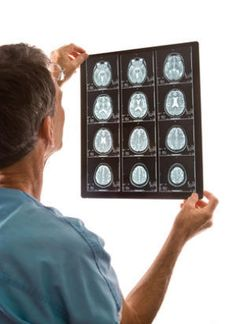 Brain imaging alone cannot diagnose autism:  Brain scans. An expert cautions against heralding the use of brain imaging scans to diagnose autism and urges greater focus on conducting large, long-term multicenter studies to identify the biological basis of the disorder. (Credit: © forestpath / Fotolia)