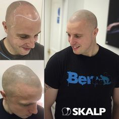 Treatment for male or female pattern baldness, alopecia, scarring. #SMP #Skalp #hairloss