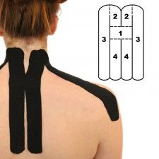 The Kindmax Precut Neck Support is a kinesiology tape application designed to relieve neck pain, spasms, stiffness and inflammation resulting from injuries, overuse, degenerative conditions or neck surgery. It can relieve neck strain, fatigue and weakness, as well as pain related to conditions such as arthritis or degenerative disc disease. Only available at: http://www.theratape.com/kindmax-precut-neck-support.html