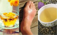The 5 best infusions to lower uric acid Prevent Arthritis, Sugar Intake, Uric Acid, Gout, Natural Treatments, Health Problems, Healthy Lifestyle, Alcoholic Drinks, Stretch Routine