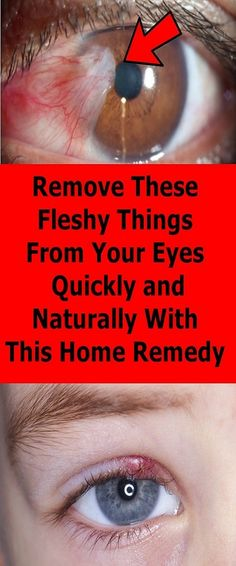 Remove These Fleshy Things From Your Eyes Quickly and Naturally With This Home Remedy - Worlds News