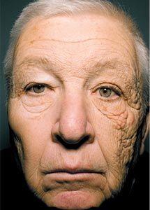 Envejecimiento de la piel por el sol. Paciente de 69 años #sun