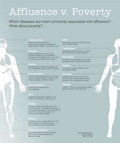 Affluence v. Poverty: Which diseases are most commonly associated with affluence? What about poverty?